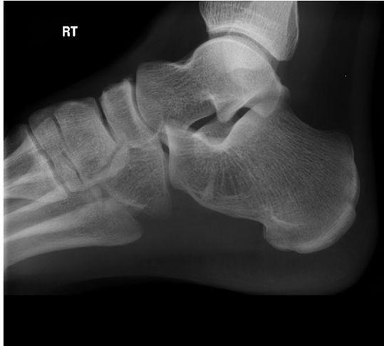 息子の足首の怪我をオヤジが真剣に喜ぶ